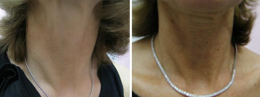 מתיחת צוואר עם חוטים ללא ניתוח